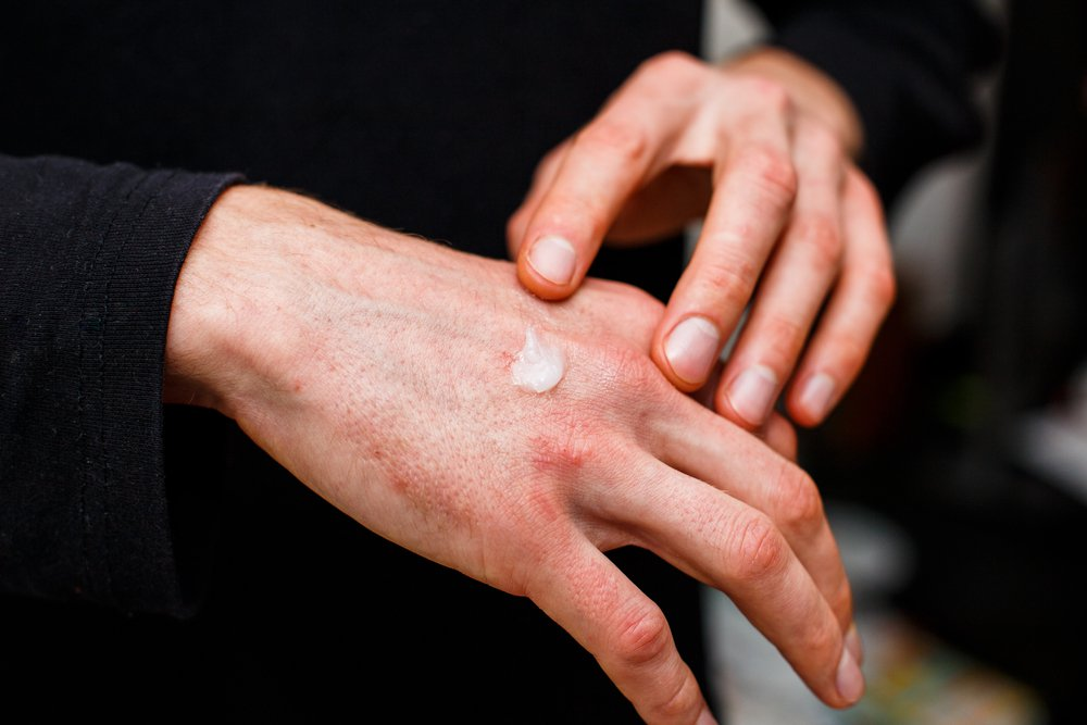 man applying CBD topical ointment to hands with skin condition